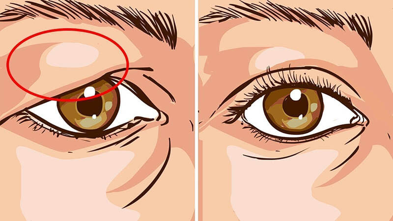 Eliminate The Drooping Eyelids Naturally With The Help Of This Remedy