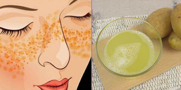Herbal Solution with Potato and Lemon for Skin Spots